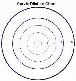Cervical Dilation Chart